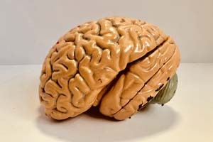 What part of the brain is usually damaged in semantic dementia | My Delta Care