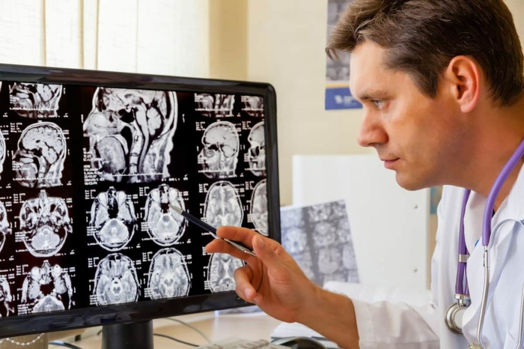 How is MID diagnosed Understanding Multi-Infarct Dementia | My Delta Care
