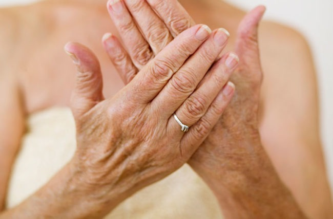 Skin Changes Aged Care Podiatry Services | My Delta Care